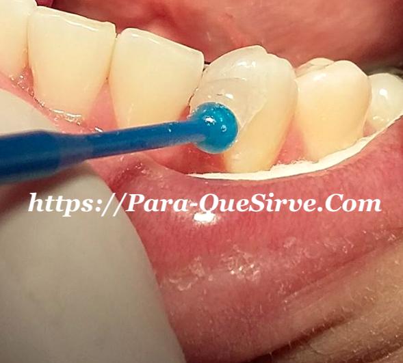 ¿Para Qué Sirven Las Carillas Dentales En Porcelana?