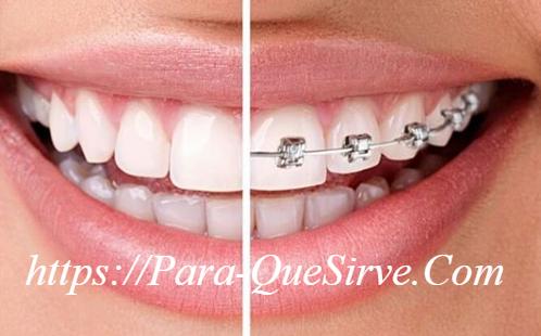 ¿Para Qué Sirve La Ortodoncia En Adultos?