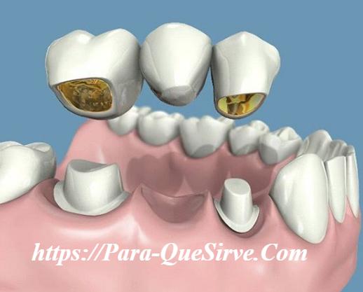 ¿Para Qué Sirve Un Puente Dental Fijo O Removible?