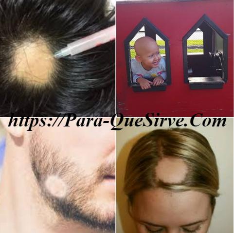 Para Que Sirve El Tratamiento Alopecia Areata En Hombres Y Mujeres