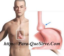 Para Que Sirve La Dieta Para La Hernia De Hiato Y Gastritis