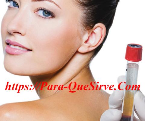 ¿Para Qué Sirve El Tratamiento De Plasma Rico En Plaquetas Para La Cara?