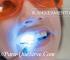 ¿Para Qué Sirve El Tratamiento De Blanqueamiento Dental?