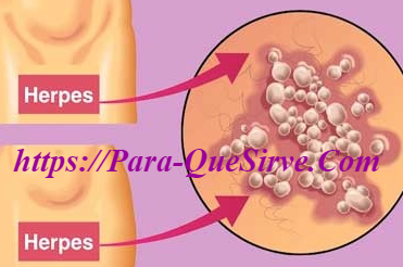 ¿Para Qué Sirve El Tratamiento Para El Herpes Genital Recurrente?