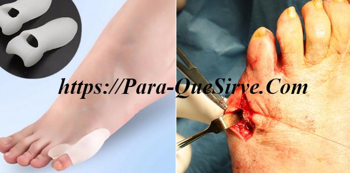 Para Que Sirve El Tratamiento De Juanete De Sastre Cirugía