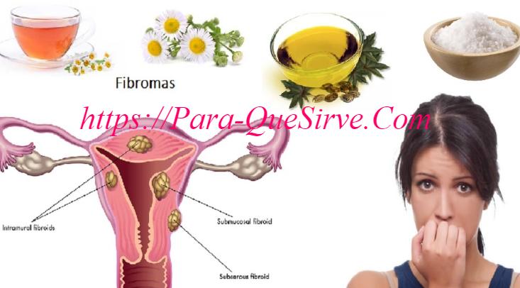 ¿Para Qué Sirve El Tratamiento Natural Para Quistes De Ovarios?