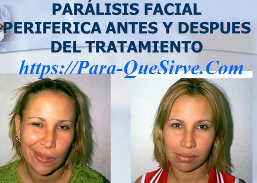 Para Qué Sirve El Tratamiento Para Parálisis Facial Periférica