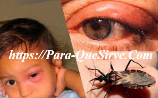 Enfermedad De Chagas Causas, Síntomas Y Tratamientos.