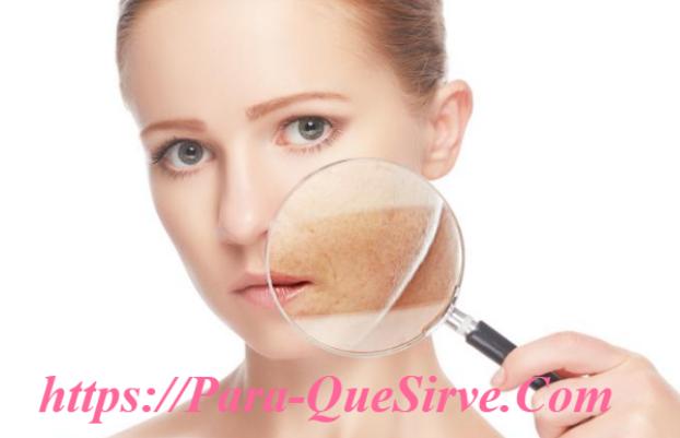 ¿Para Qué Sirve El Tratamiento De Melasma Y Cloasma En La Cara?