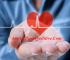 Para Que Sirve El Tratamiento Para Taquicardia Sinusal