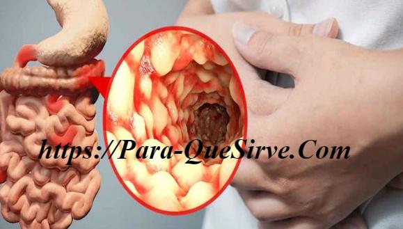 ¿Para Qué Sirve El Tratamiento De La Enfermedad De Crohn Síntomas Y Dieta?