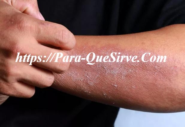 Tipos De Alergias En La Piel Y ¿Cómo Curarlas?