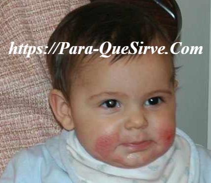 Alergia Alimentaria En Bebés Cuanto Dura