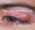 Quistes En Ojos Remedios Naturales Efectivos Para Eliminar